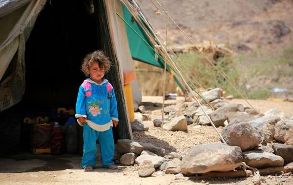 داء الجرب يتحول إلى وباء في اليمن