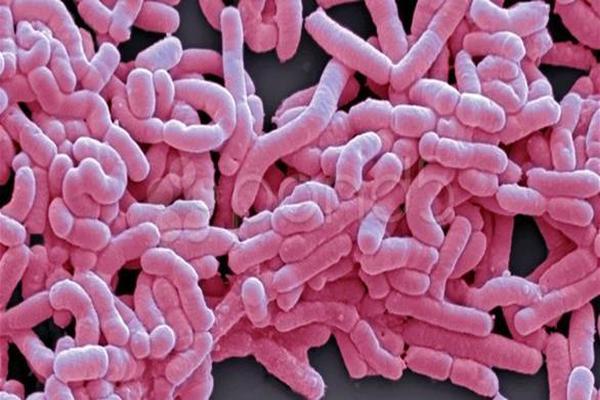 باحثون يدربون الكمبيوتر على اكتشاف البكتيريا الضارة بالانسان