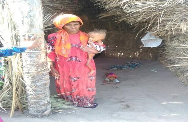 الجوع ينال من أطفال قرية البقعة بالحديدة.. صور