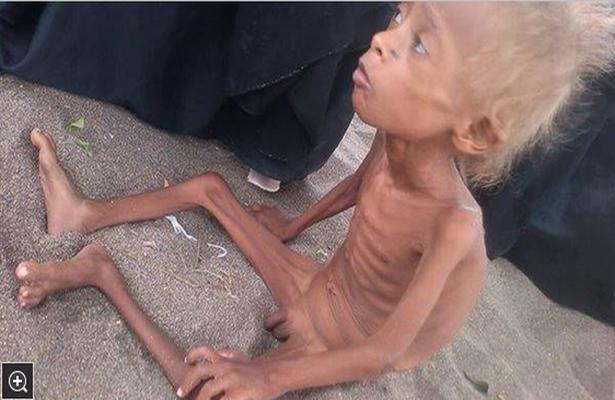 الجوع ينال من أطفال قرية البقعة بالحديدة (اليمن - حرب )