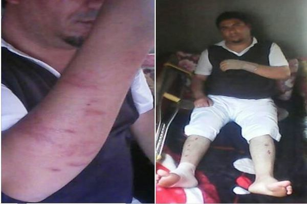 الناصري يدين الاعتداء على أمين سر الحزب بذمار من مسلحين مجهولين