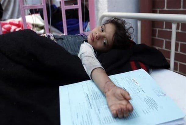 اليمن من أكبر ضحاياه.. علماء يتوصلون لتقنية أكثر كفاءة في علاج الكوليرا