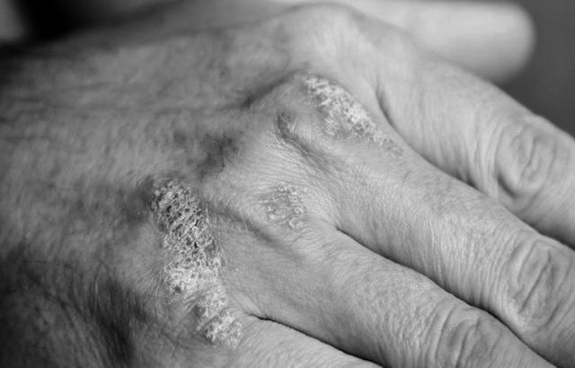 دراسة: مرضى التهاب المفاصل أكثر عرضة لخطر الانسداد الرئوي المزمن