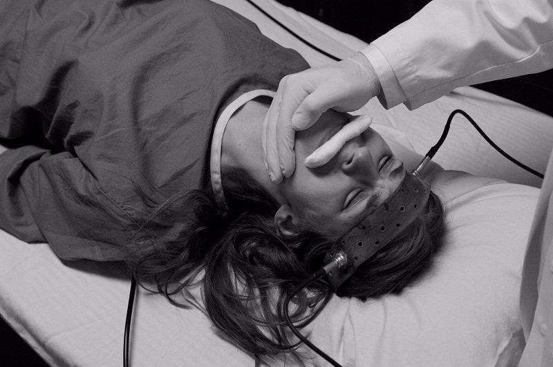 باحثون: العلاج بالصدمات الكهربائية الخفيفة ربما يخفف القلق والاكتئاب