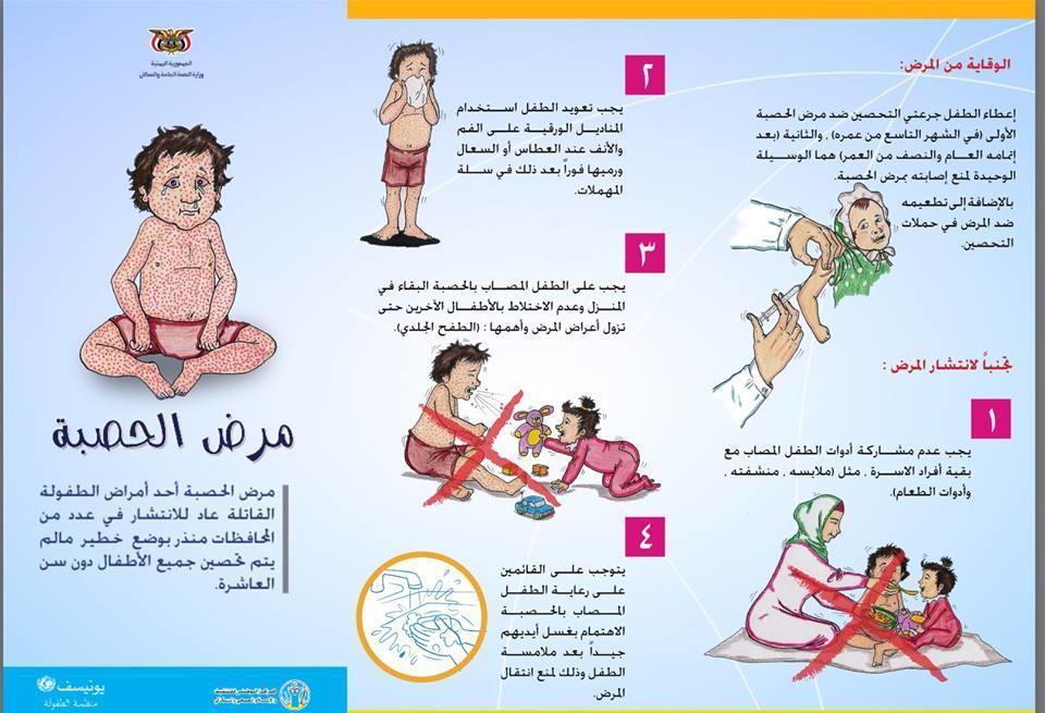 الإعلان عن ثلاث وفيات بسبب مرض الحصبة في البيضاء