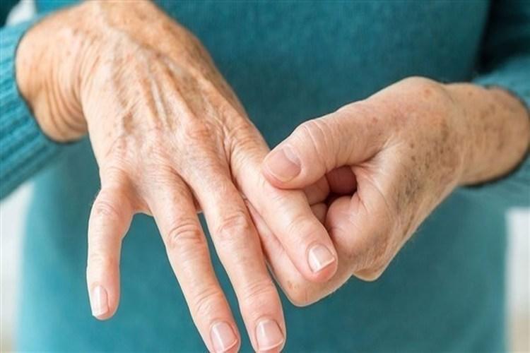 أعراض تنذر بالتهاب المفاصل الروماتويدي.. تعرف عليها