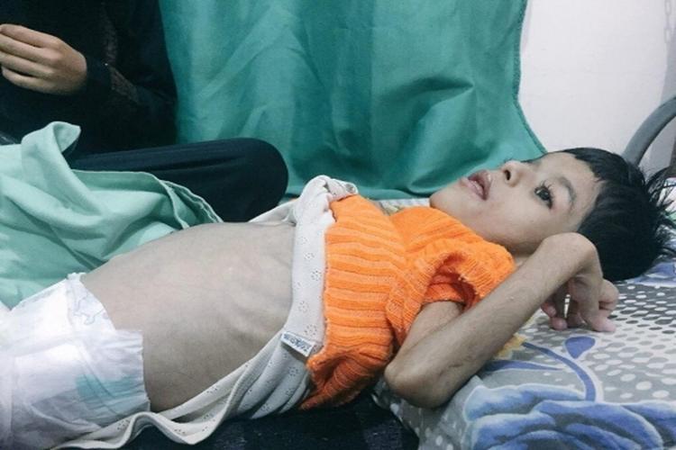 اليونيسيف: 2.2 مليون طفل يمني يعانون سوء التغذية