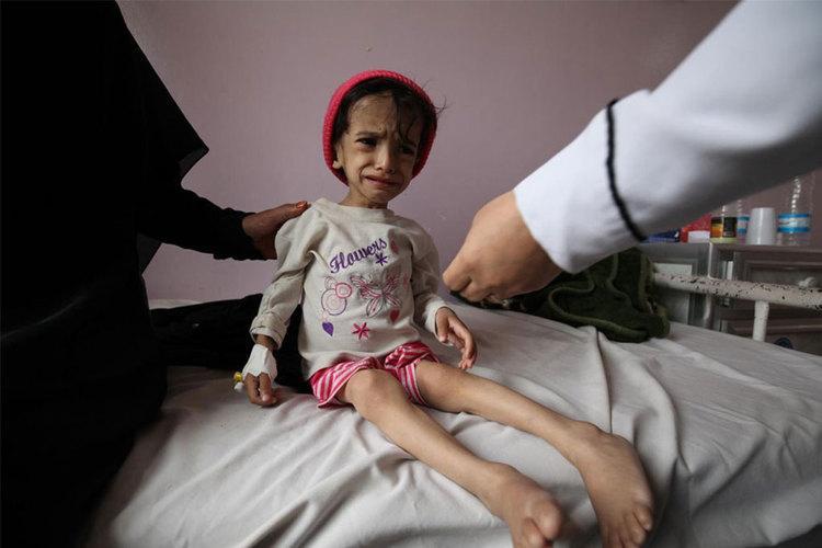 طفل يعاني يمني من سوء التغذية .