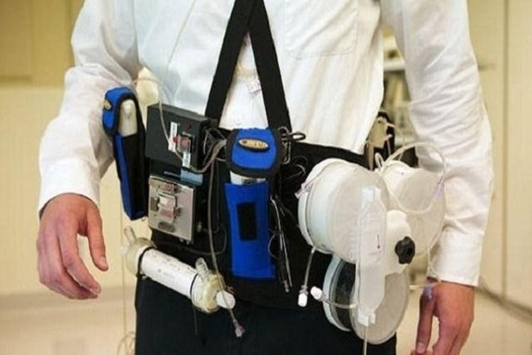 ابتكار أجهزة غسيل كلوي يمكن أن يرتديها المريض