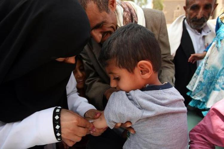 وفاة 44 طفلاً بمرض الحصبة في ذمار خلال العام الجاري