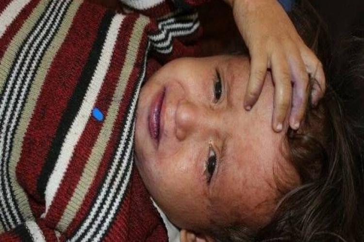 وفاة 231 مصاباً بالحصبة في اليمن خلال 2018