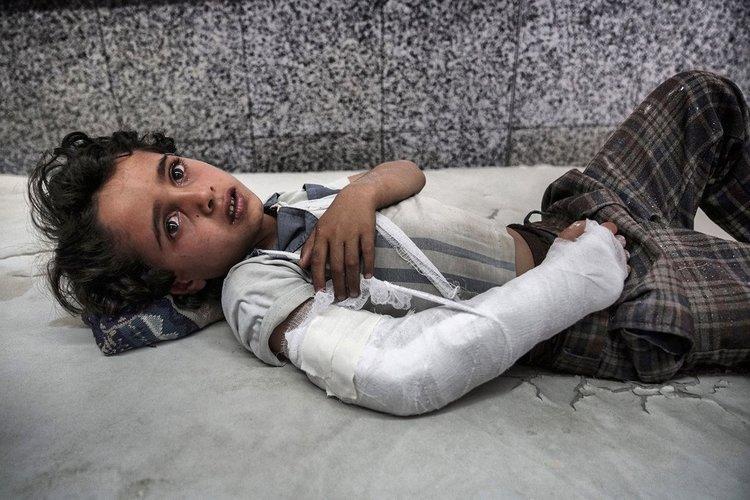 طفل يمني مصاب