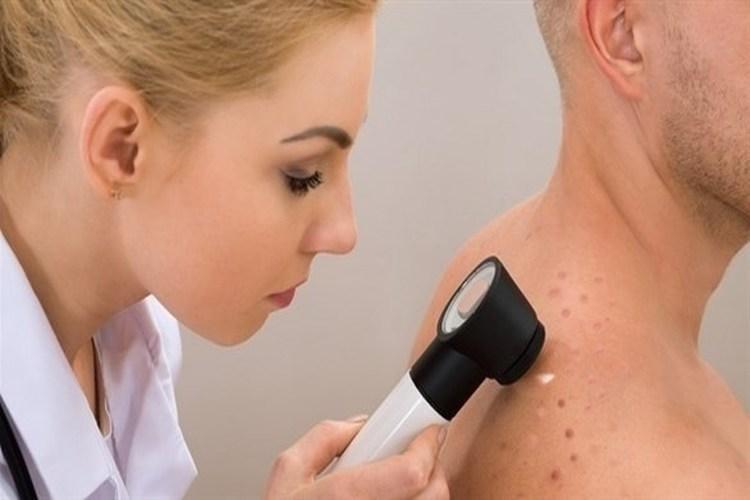 دراسة ألمانية: الذكاء الاصطناعي يتفوق على الأطباء في تشخيص سرطان الجلد
