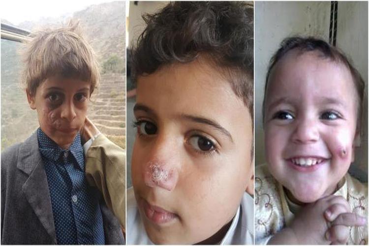 أكثر من ألف إصابة بمرض اللشمانيا في ريمة