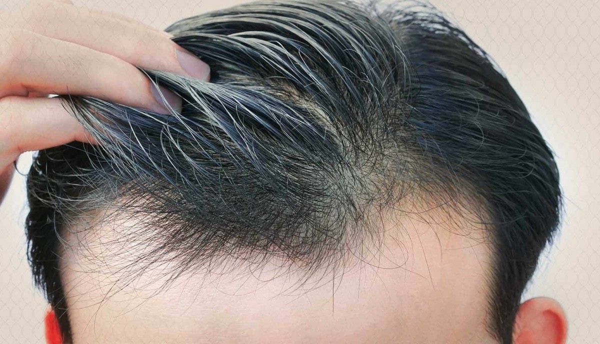 ستة عوامل تتوقف عليها زراعة الشعر .. تعرف عليها