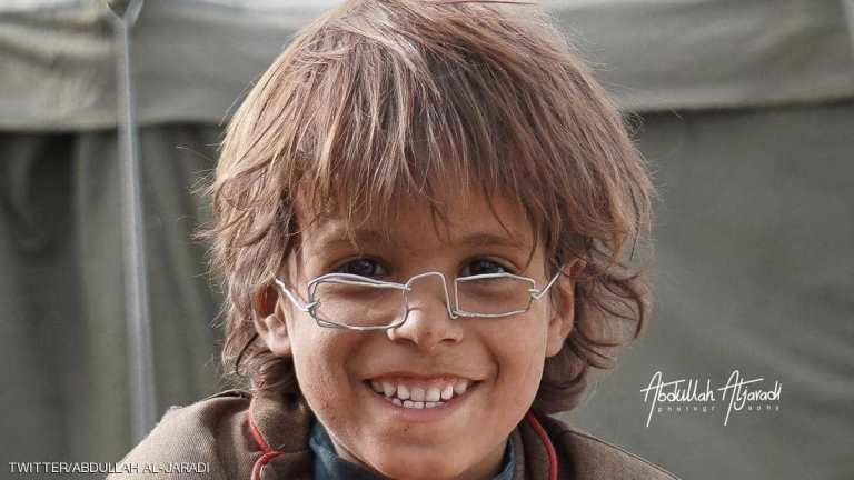 مدير مسام يشتري نظارة طفل يمني بـ2.5 مليون ريال