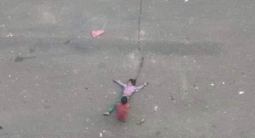 إصابة طفلة برصاص قناص حوثي في تعز وطفل آخر يهرع لإنقاذها